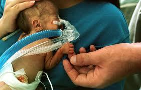 premature_infant_with_breathing_tube.jpg