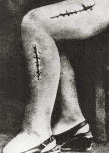 Ravensbruck Leg