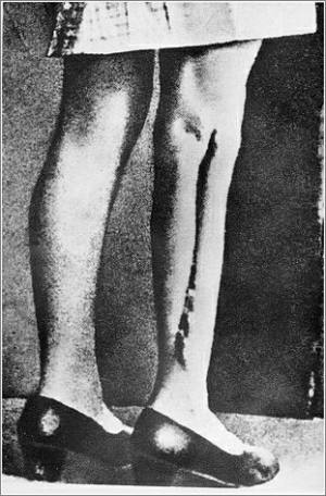 Ravensbruck, Scarred leg of a woman after medical experiments