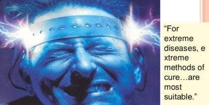 electroconvulsive-therapy-ECT