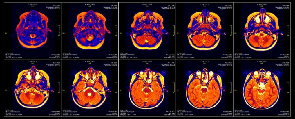 fMRI Brain Scan flaws