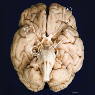 Slide of HM's damaged brain